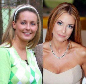 Małgorzata Rozenek przed i po